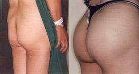 Buttocks Enhancement